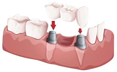 自分の歯と同じ感覚で噛む事が実現されます